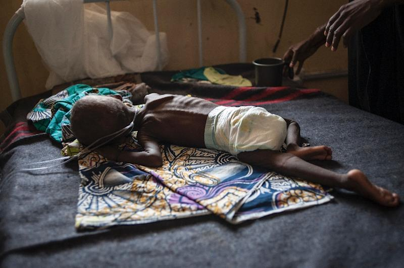 A young child suffering from severe malnutrition is treated at the In-Patient Therapeutic Feeding Centre in Maiduguri, northeastern Nigeria, on September 17, 2016 (AFP Photo/Stefan Heunis)
