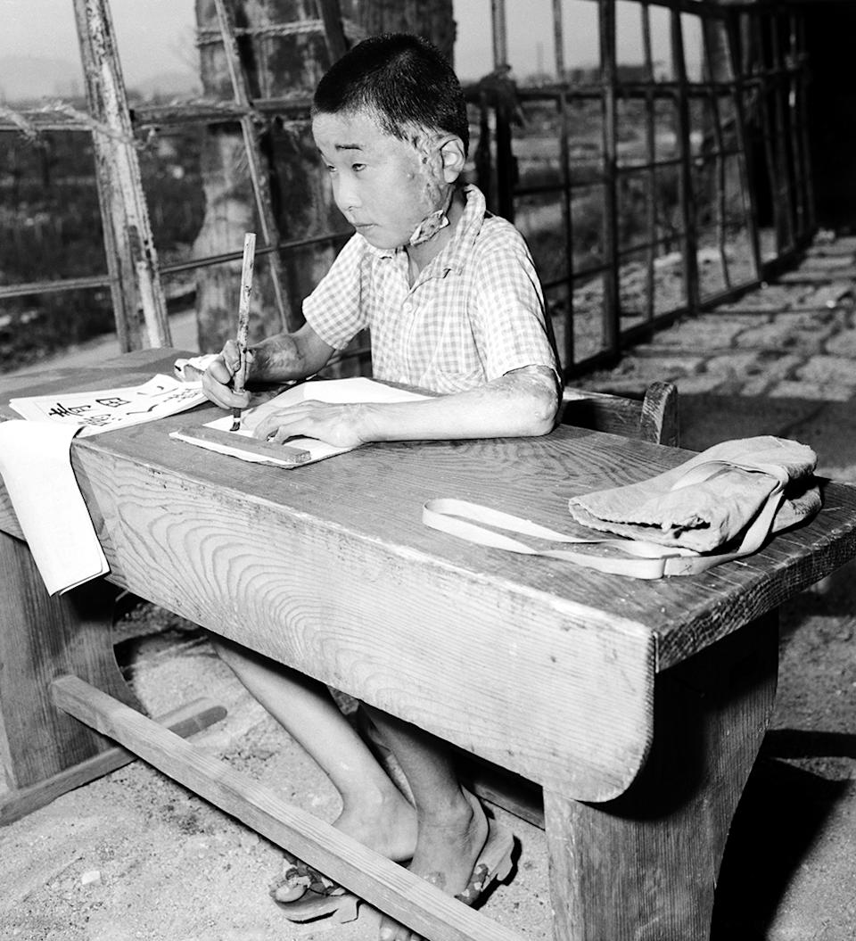 A child with scars writes on paper in a bomb-damaged classroom