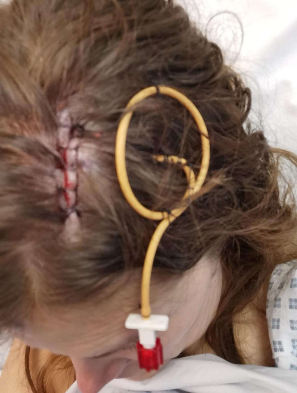 Rebecca had holes drilled into her skull to drain the fluid from her brain. (PA Real Life)