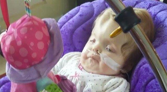Lydia was born with Dandy Walker syndrome. Source: Just Giving