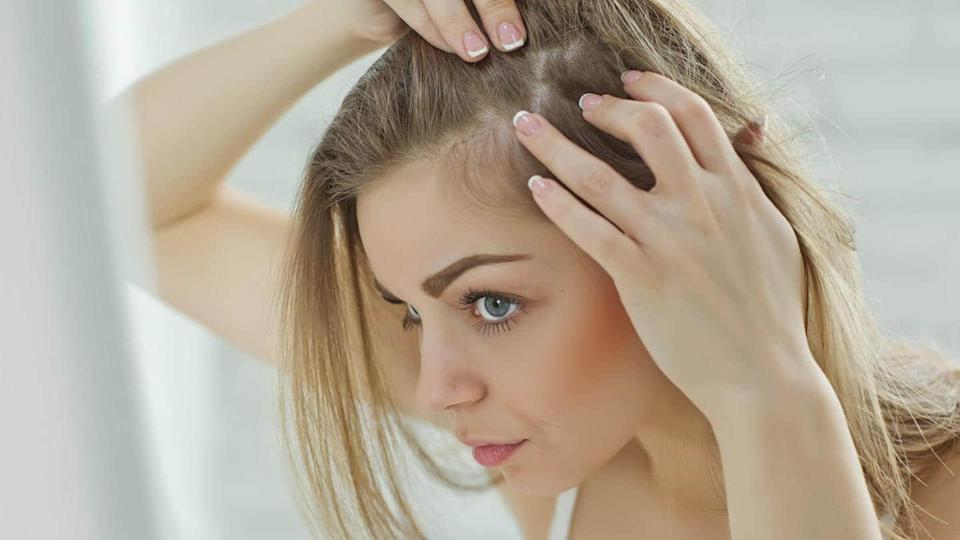What is scalp acne? Its causes, types, and prevention
