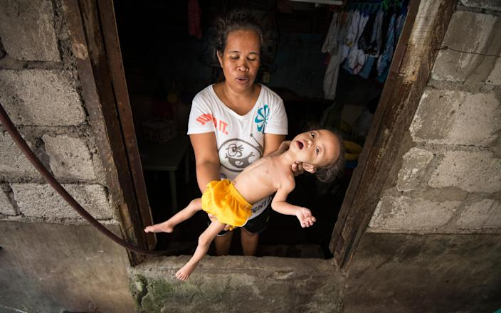 A mother holding her malnourished child in Navotas City, Philippines - Simon Townsley/The Telegraph