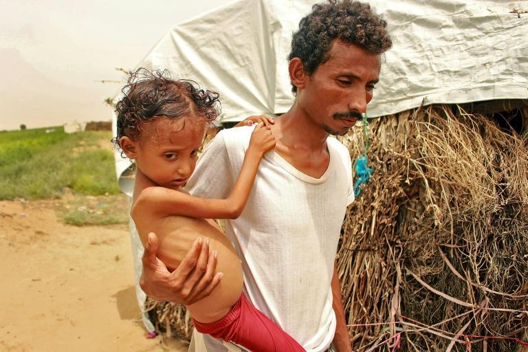 An eight-year-old Yemeni child weighing nine and a half kilogrammes is carried by her father in Hajjah Governorate, northern Yemen, in a photo from September 23, 2020