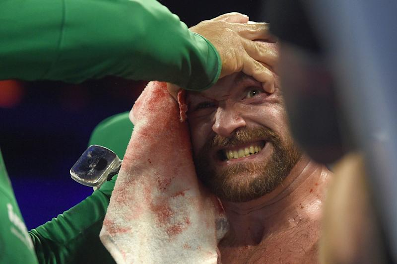 LAS VEGAS, NEVADA - SEPTEMBER 14: Tyson Fury is tended to in his corner between rounds during his heavyweight bout against Otto Wallin at T-Mobile Arena on September 14, 2019 in Las Vegas, Nevada. Tyson won by an unanimous decision after the 12-round bout. (Photo by David Becker/Getty Images)