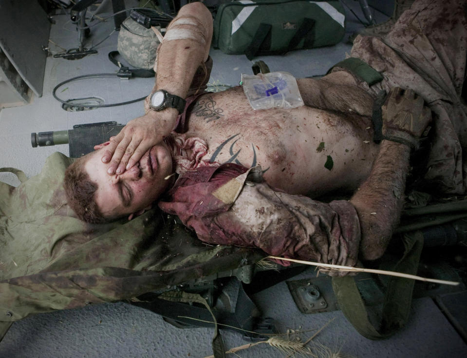 """Injured U.S. Marine Cpl. Burness Britt reacts after being lifted onto a medevac helicopter from the U.S. Army's Task Force Lift """"Dust Off,"""" Charlie Company 1-214 Aviation Regiment on June 4, 2011. (AP Photo/Anja Niedringhaus, File)"""