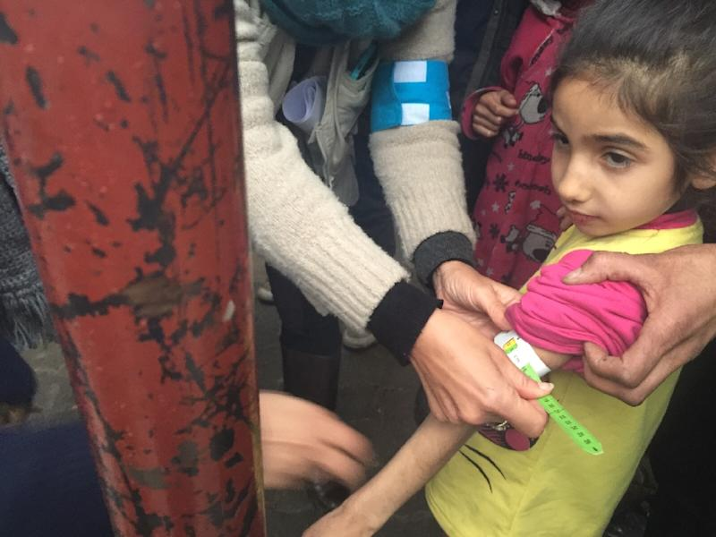A UNICEF employee measures the arm of a malnourished child in the besieged Syrian town of Madaya, as they assess the health situation of residents in January 2016 (AFP Photo/)