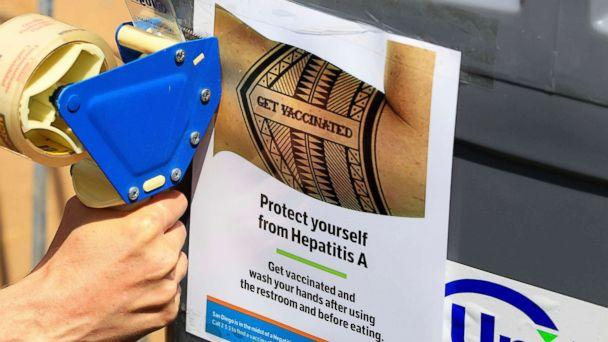 PHOTO: A worker tapes signage telling people to get vaccinated to protect themselves against hepatitis A on hand washing sinks installed at the Neil Good Day Center in downtown San Diego, Sept. 1, 2017. (Eduardo Contreras /The San Diego Union-Tribune via AP)