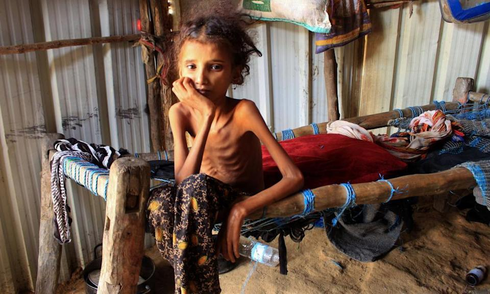 A Yemeni girl sits on her bed at a camp for the internally displaced in the northern Hajjah governorate
