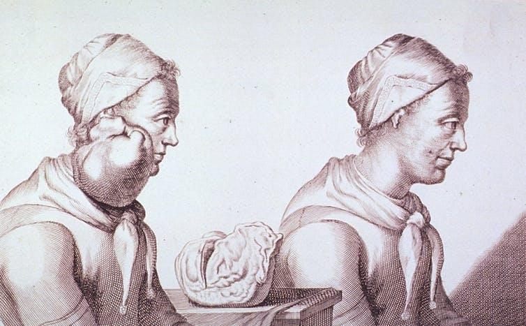 Engraving with two views of a Dutch woman who had a tumour removed from her neck.