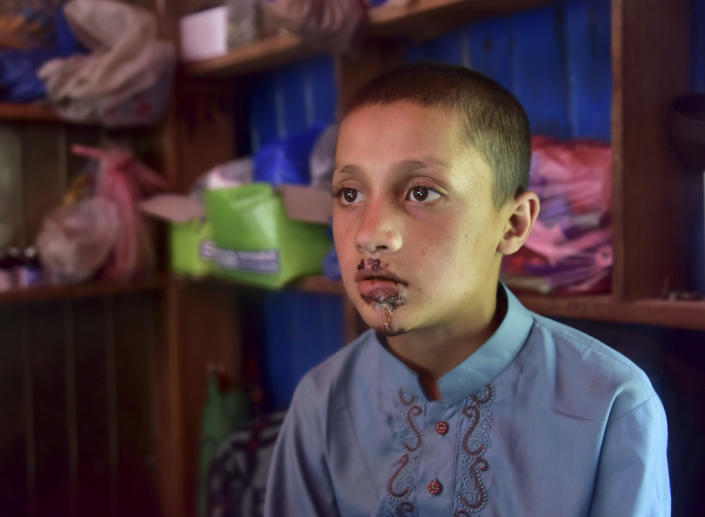 A Pakistani Kashmiri boy Mazhar Hussain, shows his injuries he received when Indian forces fired on Nosehri village on the Line of Control that divides Kashmir between Pakistan India, near Muzaffarabad, Pakistan, Sunday, Aug. 4, 2019. Tensions have soared along the volatile, highly militarized frontier between India and Pakistan in the disputed Himalayan region of Kashmir, as India deployed more troops and ordered thousands of visitors out of the region. (AP Photo/M.D. Mughal)