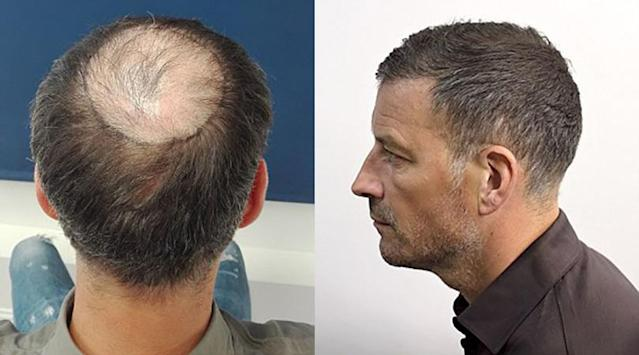 The former Premier League referee has sorted out his fading barnet with some professional help