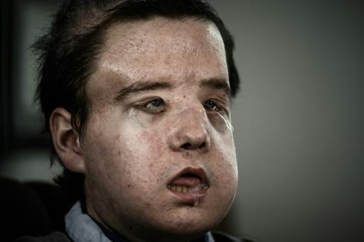 Jerome Hamon is the first man to have received two face transplants, a feat carried out in Paris