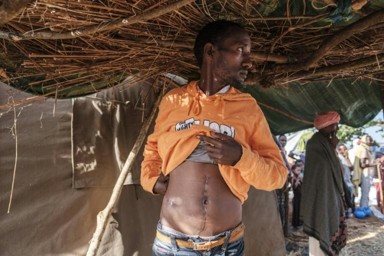 Dawud Kibret shows scars of where he was shot in the abdomen. He is keen to join a government-organized militia