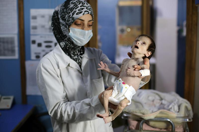 One of the final photos of 1-month-old Sahar Dofdaa, taken Oct. 21. (AMER ALMOHIBANY via Getty Images)