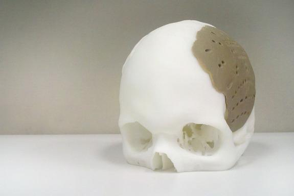 3D-Printed Medical Devices Spark FDA Evaluation