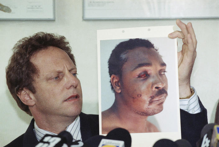 Steven Lerman, attorney for Rodney King, displays a photo of his client during a press conference at his office in Beverly Hills, California, Friday, March 8, 1991. King's doctor outlined the extent of man's injuries for reporters during the meeting. (Nick Ut/AP Photo)