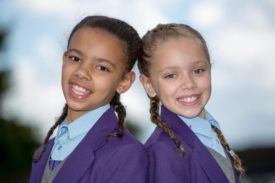 <em>Biracial – despite being born nearly identical, Millie became darker skinned while Marcia's complexion lightened (Pictures: SWNS)</em>