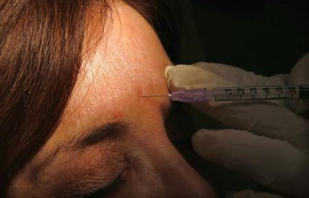 FILE PHOTO: Howard Sobel, dermatologist and dermatologic surgeon, demonstrates how botox or other anti-wrinkle medicines are applied via syringe to a patient at his office in New York City