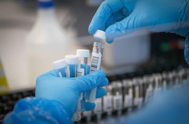 Patients' samples are transferred by scientists into plates