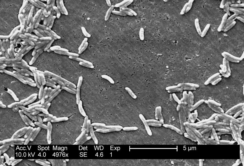 This 2004 electron microscope image made available by the Centers for Disease Control and Prevention shows Gram-negative Campylobacter fetus bacteria. As of April 2019, recent illnesses tied to raw turkey, ground beef, cut melon and romaine lettuce suggest, U.S. food poisoning cases don't appear to be going away anytime soon. Salmonella and campylobacter are allowed in raw poultry sold in supermarkets, noted Tony Corbo of Food and Water Watch, an advocacy group that supports stricter food safety regulations. It's why health experts advise people to properly handle and cook poultry. (Janice Haney Carr/CDC via AP)