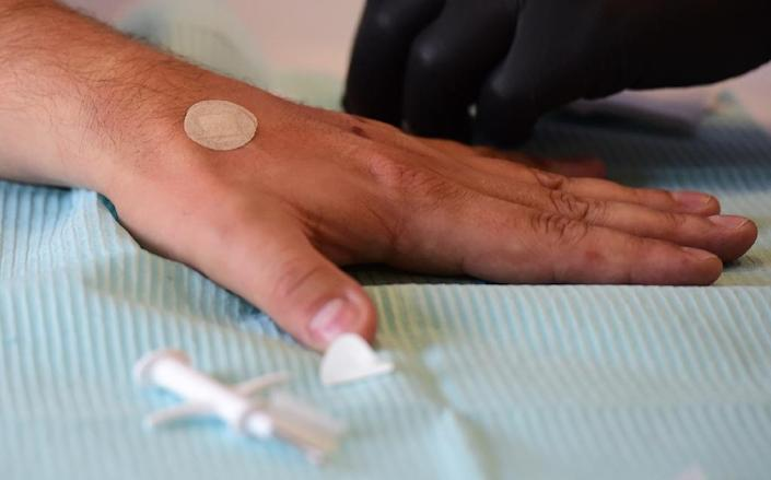 A Kaspersky employee has a microchip implanted in his hand ahead of the IFA consumer electronics fair in Berlin, on September 3, 2015 (AFP Photo/John MacDougall)
