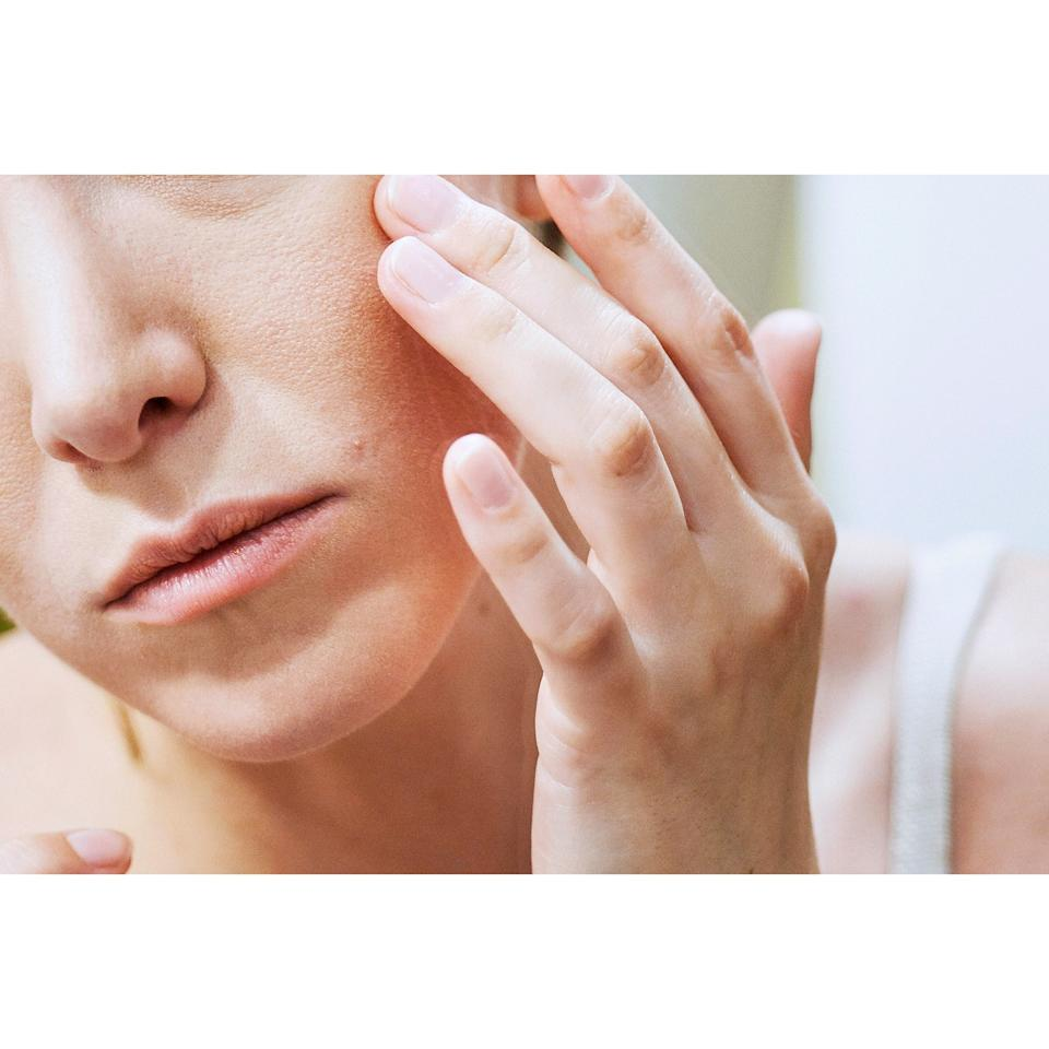 """If you haven't been officially diagnosed and you're trying to get a preliminary sense before you head to a doctor, it's not hard to WebMD your way into mixing up eczema with <a href=""""http://www.allure.com/beauty-trends/blogs/daily-beauty-reporter/2013/03/cara-delavingne-how-to-heal-psoriasis.html?mbid=synd_yahoo_rss"""">psoriasis</a>, another skin condition that can cause redness, itching, and scaliness. One of the main differences between the two: Eczema is damp whereas psoriasis is dry. """"With eczema, fluid can leak from inflamed skin cells, making the skin red and moist,"""" says Doris Day, a dermatologist and clinical associate professor of dermatology at the New York University Langone Medical Center in New York City. (OK, now power down and make an appointment.)"""