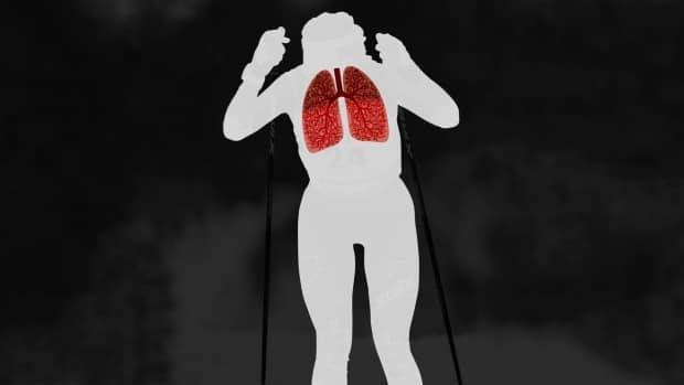 A graphic representation of Stewart-Jones shows the airways in her lungs and how they appear like tree branches.