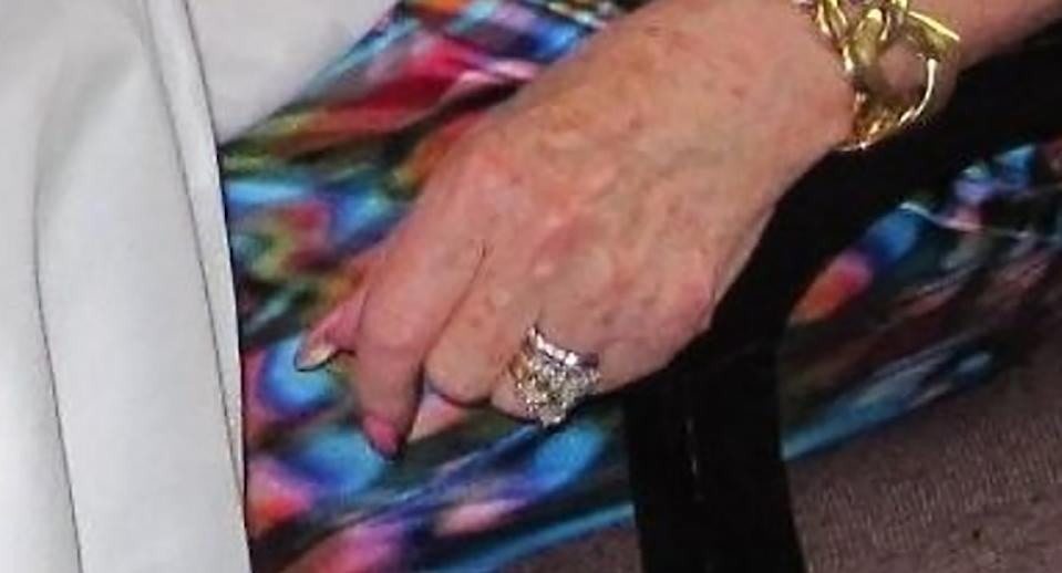 Engagement and wedding rings are pictured on an elderly woman's hand.