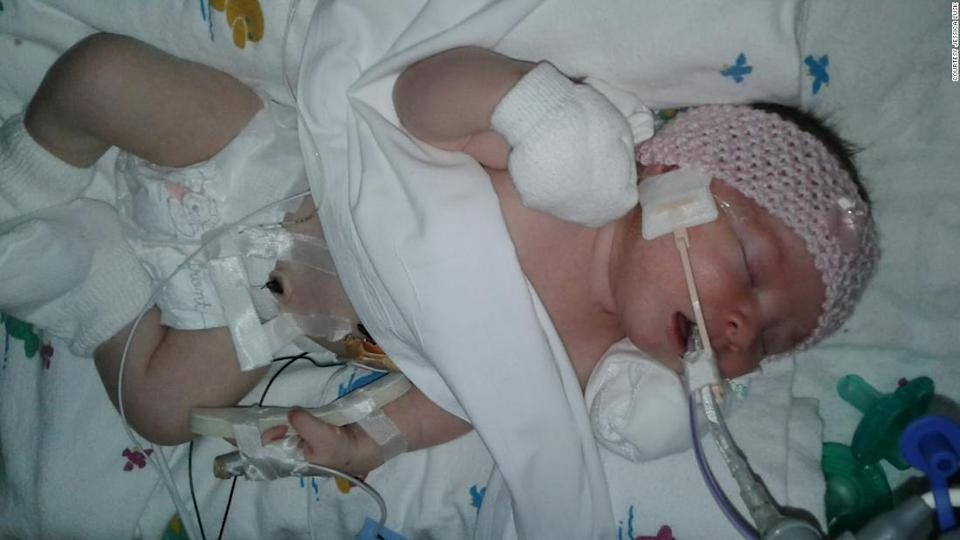 """<p>Brandi, here in the ICU as a baby, has already beaten expectations.</p><div class=""""cnn--image__credit""""><em><small>Credit: Courtesy Jessica Lusk / RACI</small></em></div>"""