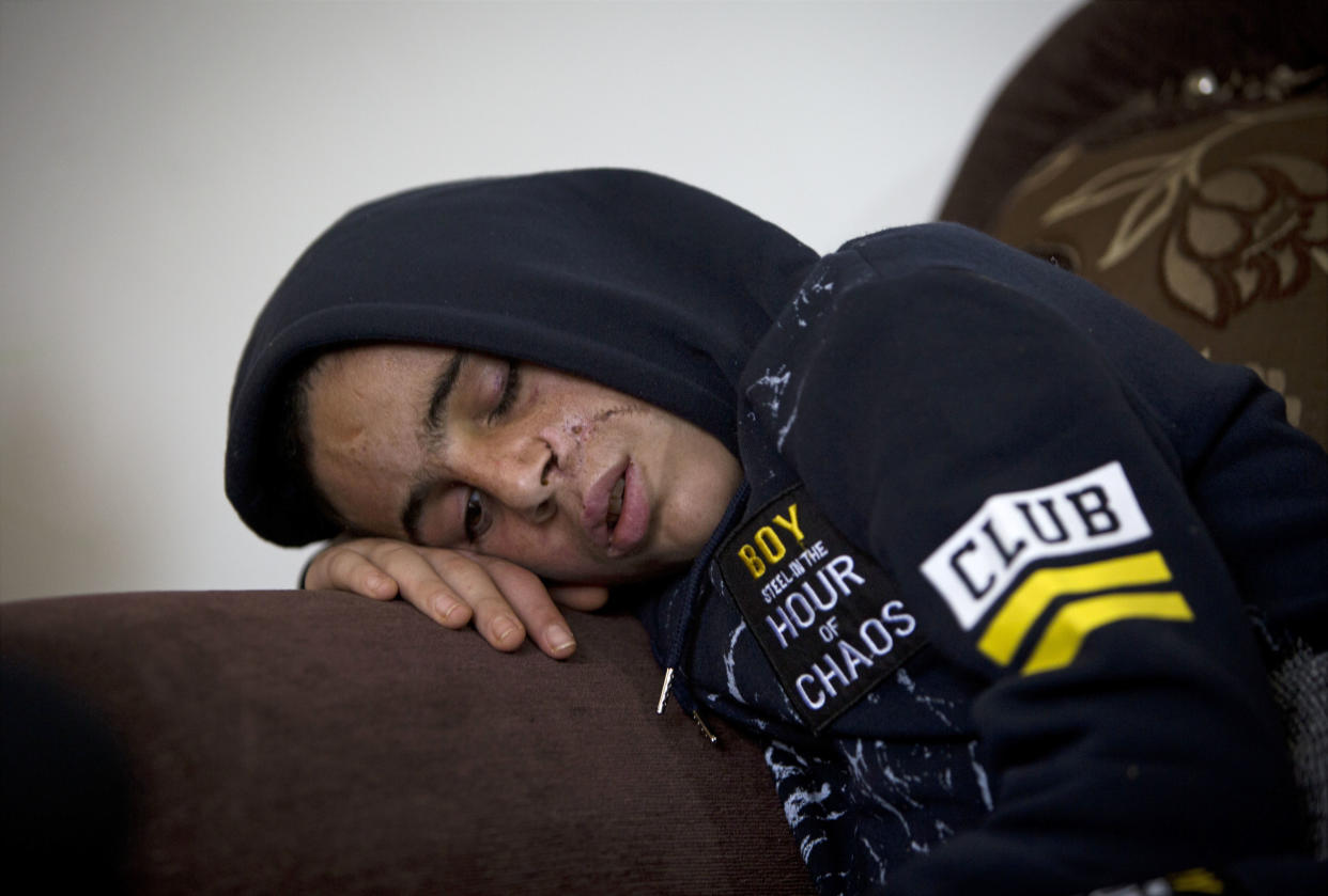 Mohammed Tamimi, Ahed Tamimi's 15-year-old cousin, is recovering from a head injury sustained after clashes with Israeli troops on Dec. 15, 2017. (Photo: Majdi Mohammed/AP)