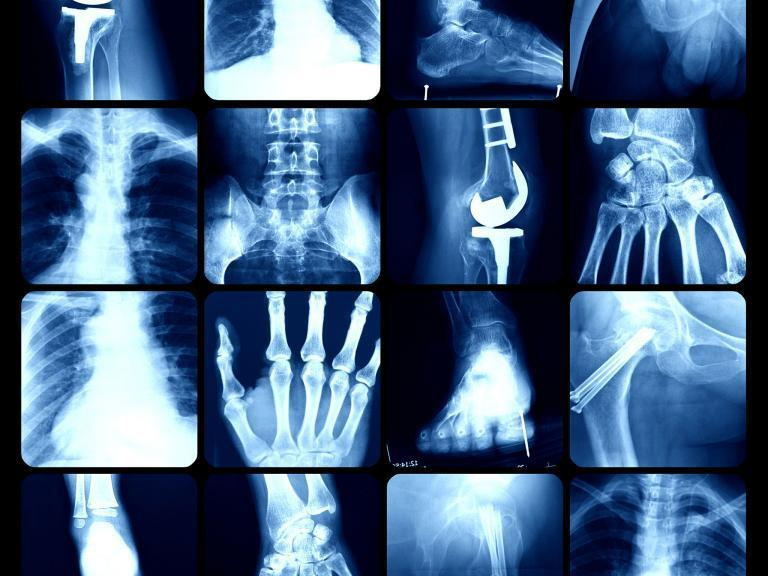Why your joints pop and crack