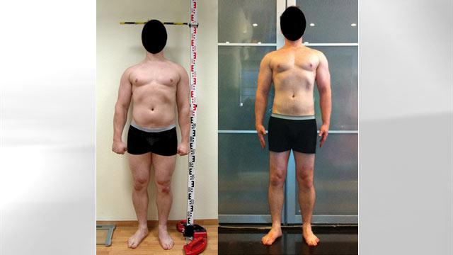 New York Man 'Grows' Six Inches Through Surgery