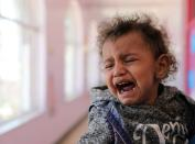 A child cries at malnutrition treatment ward of al-Sabeen hospital in Sanaa
