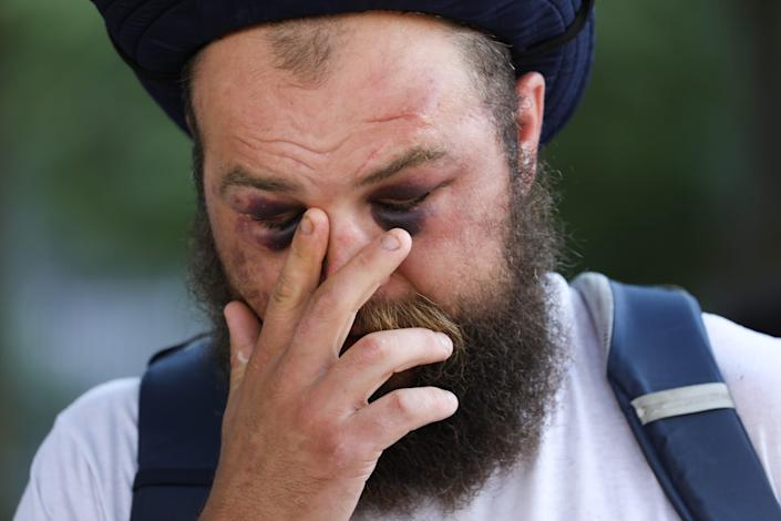 Kevin Quart, 34, who lives in downtown Detroit, touches his face when attending the Detroit Will Breeze Conference near Detroit Police Department on Sunday, August 23, 2020. When he was tackled by police and injured, he provided protesters with a safe space in his apartment. He was transferred to DMC and later arrested.