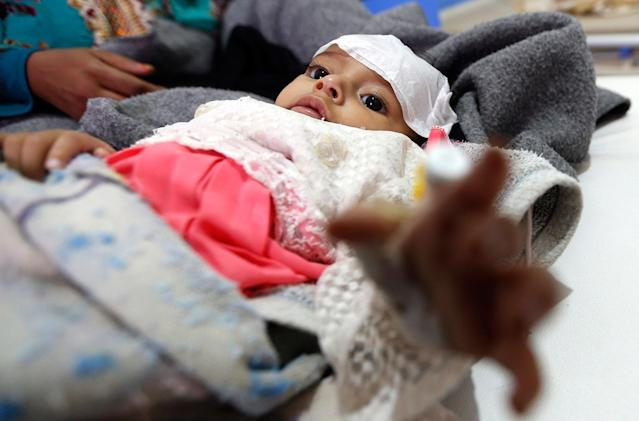 <p>A Yemeni infant suspected of being infected with cholera receives treatment at Sabaeen Hospital in Sana'a, on June 13, 2017.<br> Six weeks into the second outbreak of the deadly disease in less than a year, at least one patient checks in at Sabaeen every 60 seconds — a level of emergency that overwhelms staff. (Mohammed Huwais/AFP/Getty Images) </p>