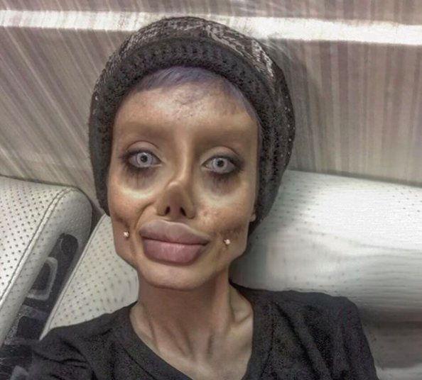 19 Year Old Sahar Tabar >> Teen undergoes 50 surgeries to resemble Angelina Jolie