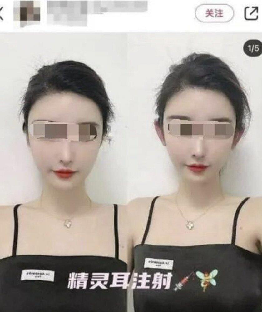 The procedure comes with risks, some doctors warn. Photo: Baidu
