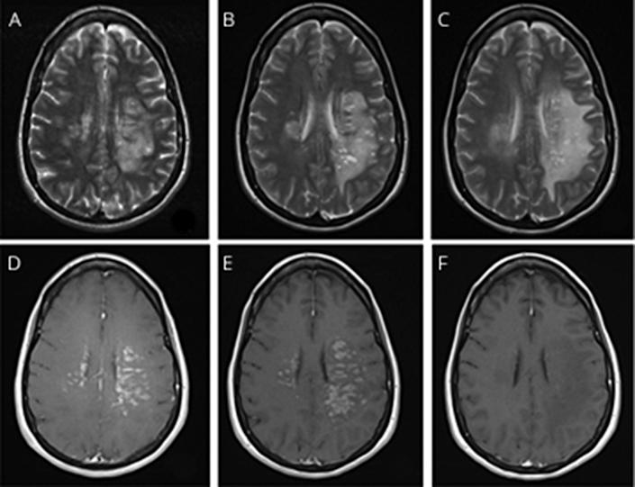 MRI images show scans of Rebecca Wrixon's brain on the day she was admitted to hospital (A), six days after admission (B) and 17 days after admission (C), with inflammation appearing in a lighter shade. / Credit: American Academy of Neurology/University Hospital Southampton