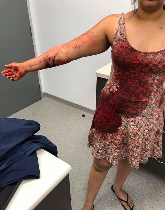 Coco's owner posted photos of her clothes and body covered in blood on Facebook (Facebook)