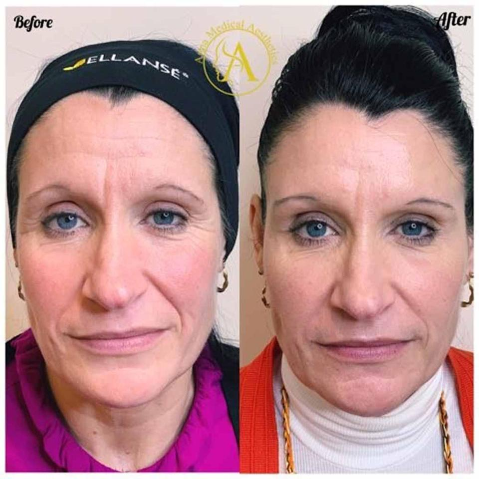 The mum of two couldn't believe the difference after she had dermal fillers in November 2019 (Collect/PA Real Life).