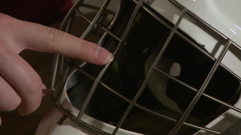 Broken goalie masks tied to 2 more severe eye injuries after recall