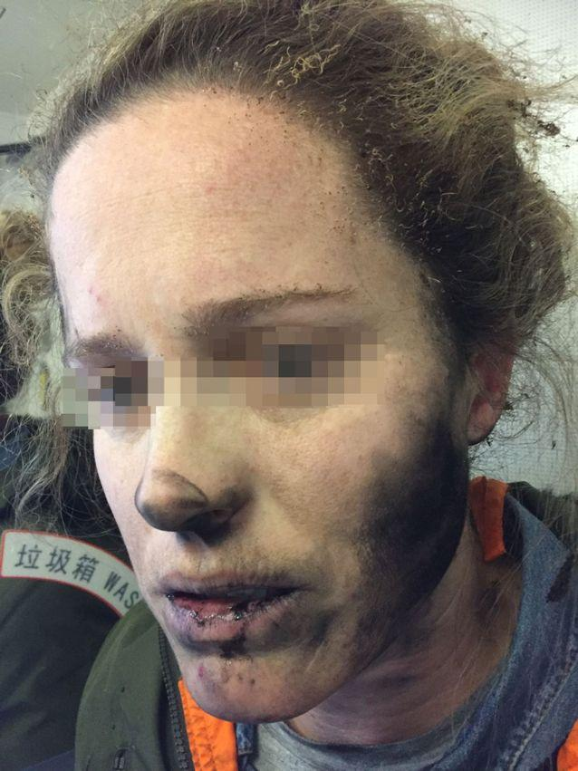 The headphones exploded on the woman's head while she slept. Source: ATSB