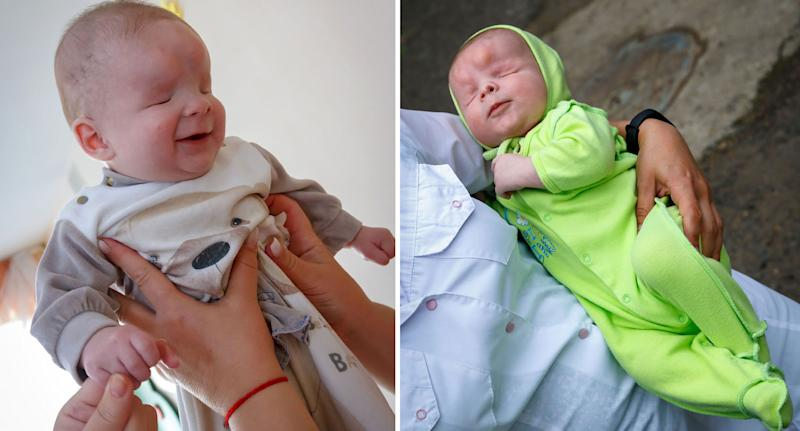 Photos of baby Sasha who was abandoned by mum after being born with no eyeballs.