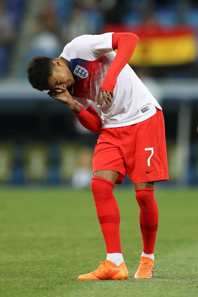 <p>Jesse Lingard of England reacts after an insect lands in his ear ahead of the 2018 FIFA World Cup Russia group G match between Tunisia and England at Volgograd Arena on June 18, 2018 in Volgograd, Russia. (Photo by Clive Rose/Getty Images) </p>