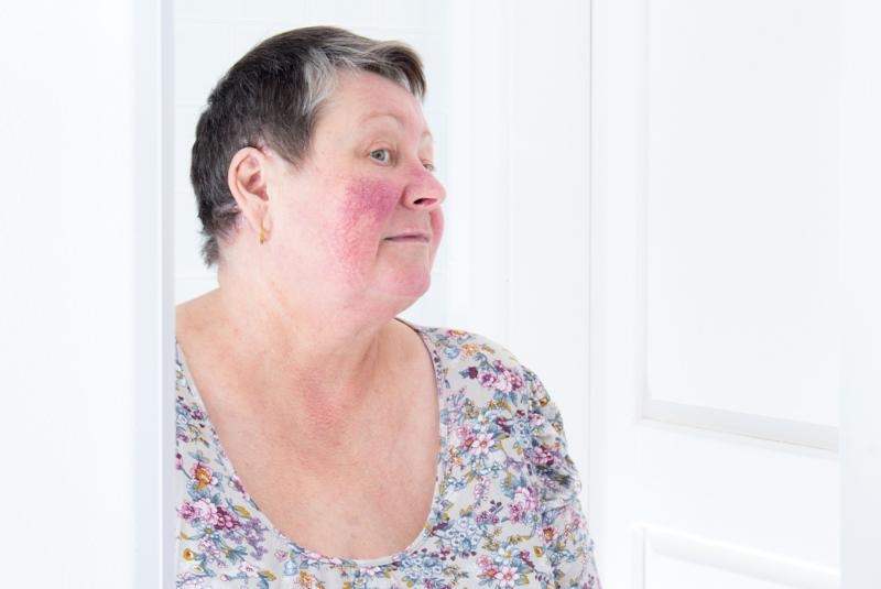 A woman with rosacea, askin condition characterized by facial redness, small and superficial dilated blood vessels, pimples and sometimes ruddy skin.