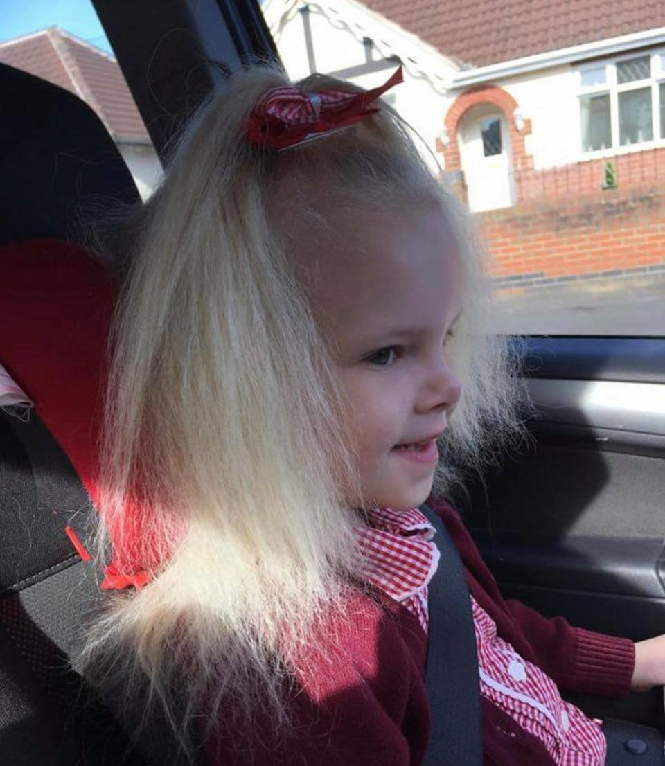 Lyla Grace suffers from uncombable hair syndrome. (Caters)