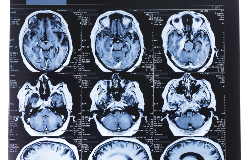 Here's what we know about how the coronavirus can affect the brain 1
