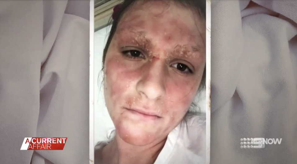 Lauren Rigby suffered a severe reaction from hand sanitiser and disinfectants used amid the coronavirus pandemic. Source: A Current Affair/Nine