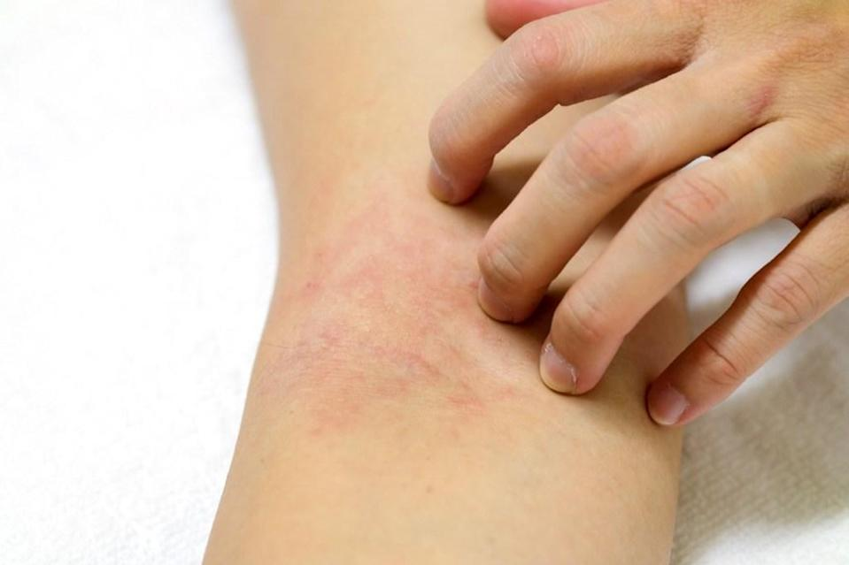 Constant rashes are definitely annoying, but they could also be a sign of something more significant. Many people don't realize that beyond the age of 40, their digestive system is not absorbing enough micronutrients, which can result in low levels of iron, magnesium, and B vitamins, says <strong>Dean C. Mitchell, MD</strong>, clinical assistant professor at Touro College of Osteopathic Medicine. Those deficiencies could lead to a chronic rash.