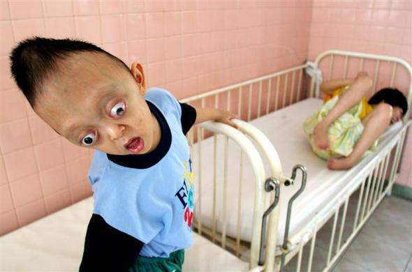 Vietnamese defoliant Agent Orange Victims Nguyen Xuan Minh (L), 5, and Nguyen Thi Thuy Giang, 25, of Hanoi are seen at the Peace Village in Ho Chi Minh city, September 15, 2006.